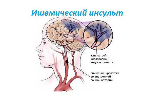 Milline efektiivne salv osteokondroosis