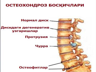 Mis salv aitab spin osteokondroosi Shimmeering valud liigesed