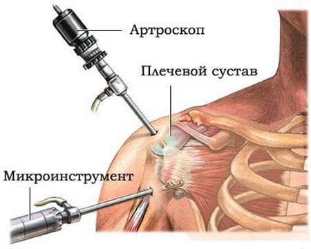 Valu vasakpoolse ola liigese ajal poorlemise ajal
