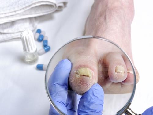 Jalgade liigeste haigused