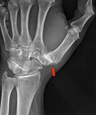 Kiirusta vasakult ray Artroosi ravi inimestel