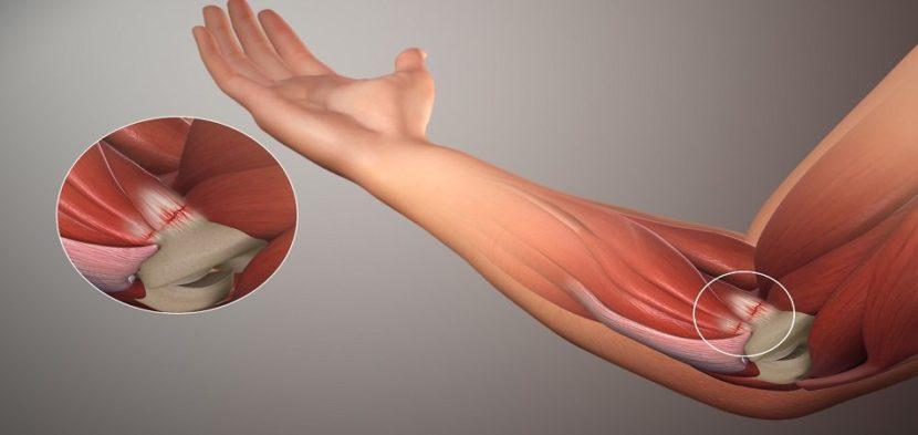Omavalitsuse artroosi ravi