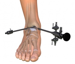 Vaikeste jala liigeste artriidi margid Oh spin valutab