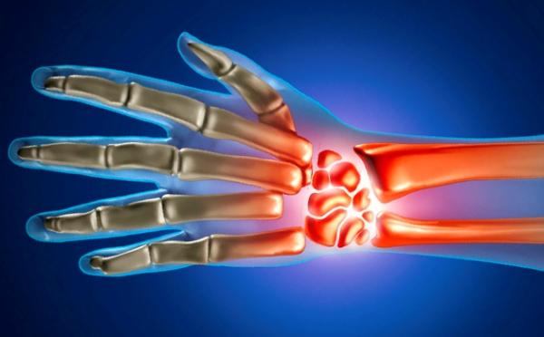 Poidla artriidi artroos