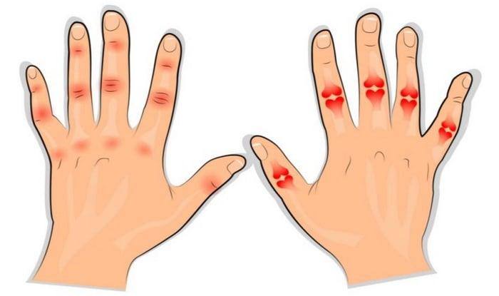 Ravi artriidi artroosi inimestel Kellele liigeste vigastamisel kokku puutuda