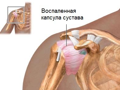 Inimeste meetod ola liigese artroosi raviks Valu liigeste kaed kui ravida