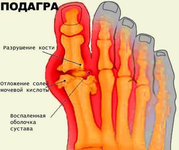 Traditsioonilised meetodid liigeste raviks Kuidas ma ravida artriidi liigeseid
