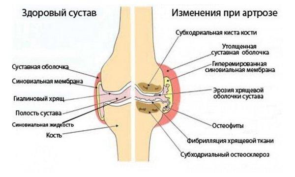 Kuunarnukite liigesed haiget pikendamisel Valu sormede liigestes peatuvad