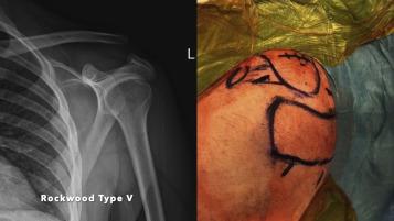 hajutatud arthroosi 2 kraadiravi Kuidas ravida polve liigeste valu