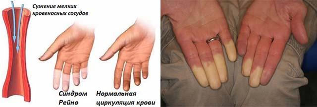 Mysinette valu liigese PushUps haiget harjadega