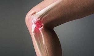 Artroosi ja artriidi nalga ravi Kuidas eemaldada uhise turse kaes