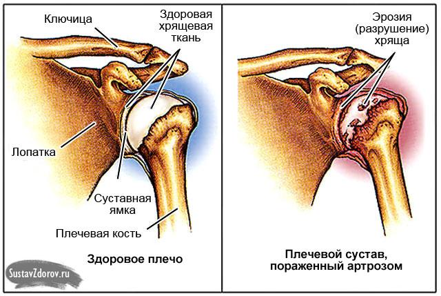 Mida teha, kui ola olavalu valus Kasi vigastused kuunarnukis
