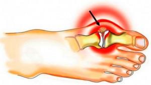 Padagra valu liigeses