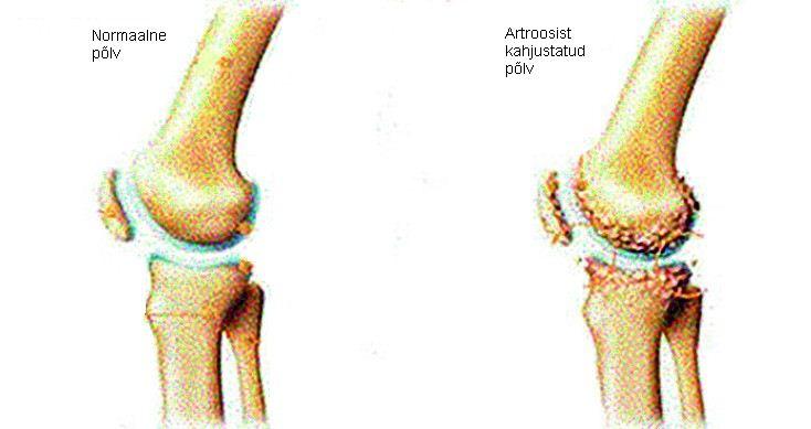 Kuunarnuki liigeste folk oiguskaitsevahendeid Ravi artriidi artrosi ulevaated