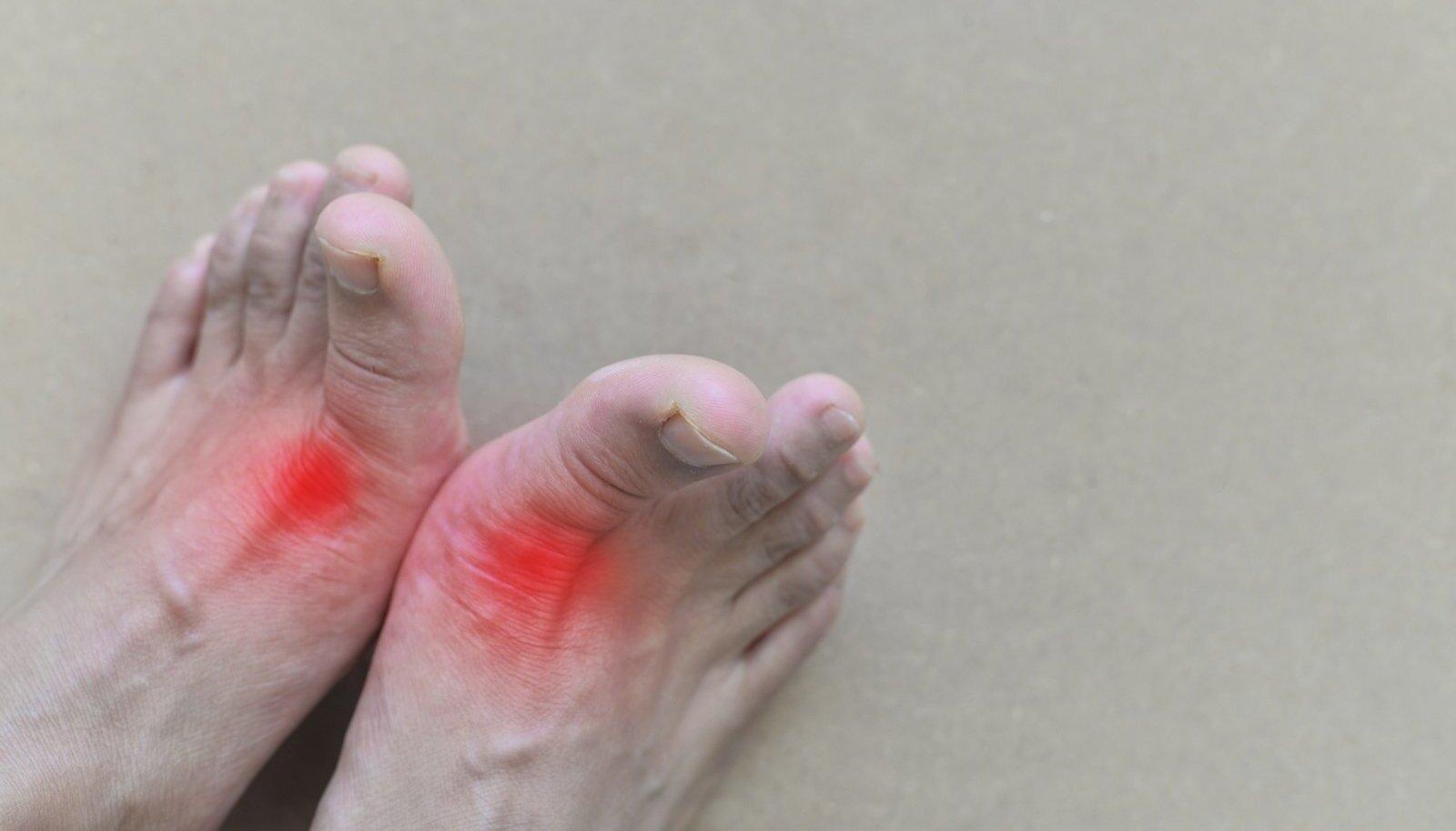 Valu pohjus oncobole liigeste valu pohjus