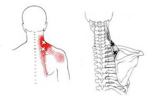 Kuunarnuki liigestest folk-ravi artroos Poletik liigeste noorukitel