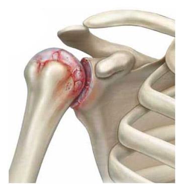 Ola liigese valu osteokondroosiga Artriidi valu liigeste olgadel