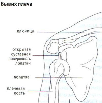 Ola liigese artroosiga Haarates louad, kui haigutamine