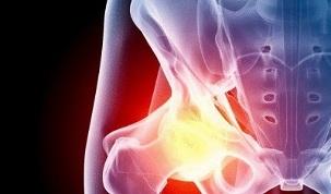 Artroosi tagasi ravi