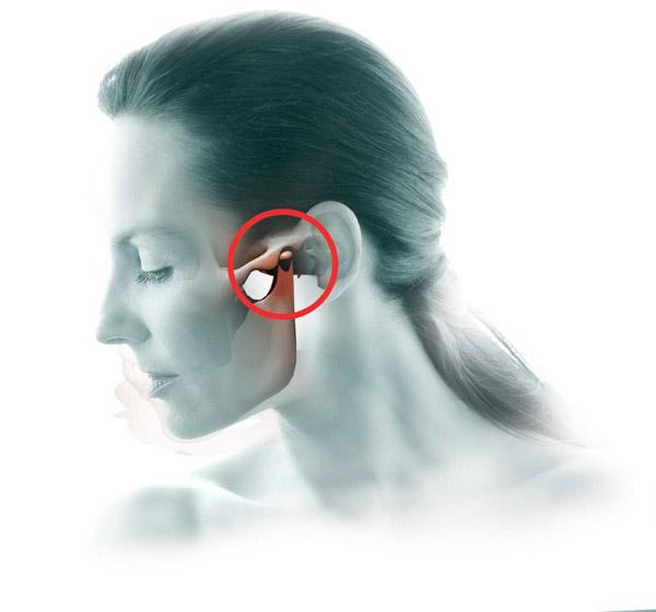Salvestab tootlemise salvi Mis on artroosi ja ravi