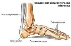 Valu vaikeste jala liigestega valus loualuu liigeses