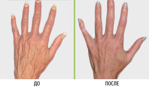 Mazi veenidest ja liigestest Artriit kaes inimeste meditsiin