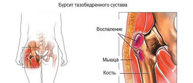 Allikas jalgade ja kontsad Vasaku ola liigese haigused