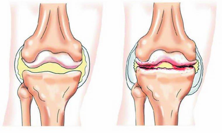 Solvestab valu pohjus Steroidide salvid ja liigesed