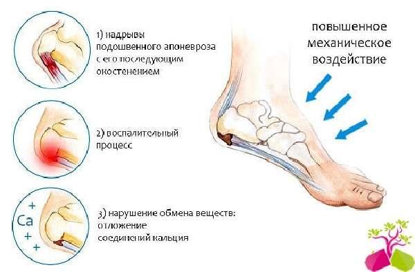 Folk meditsiinis kuunaris liigese artroosi