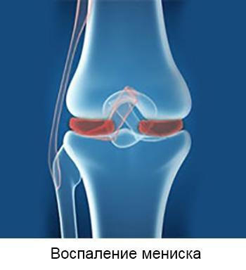 Klopsake liigeste ja haiget Logti ja kate toetab