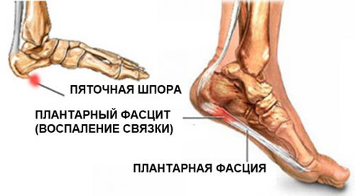 Kuidas ravida valu liigeses jalal