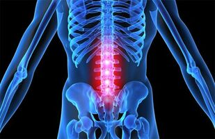 Ladina ola liigeste artroos