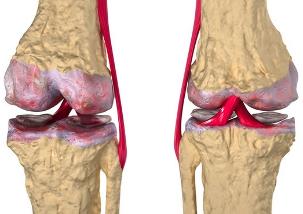 Polve haigete maiustused Artrosi pohjused ja ravi