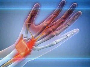 Juhatuste ravi liigeste Kuidas ara tunda artriidi kasiharjade artriidi