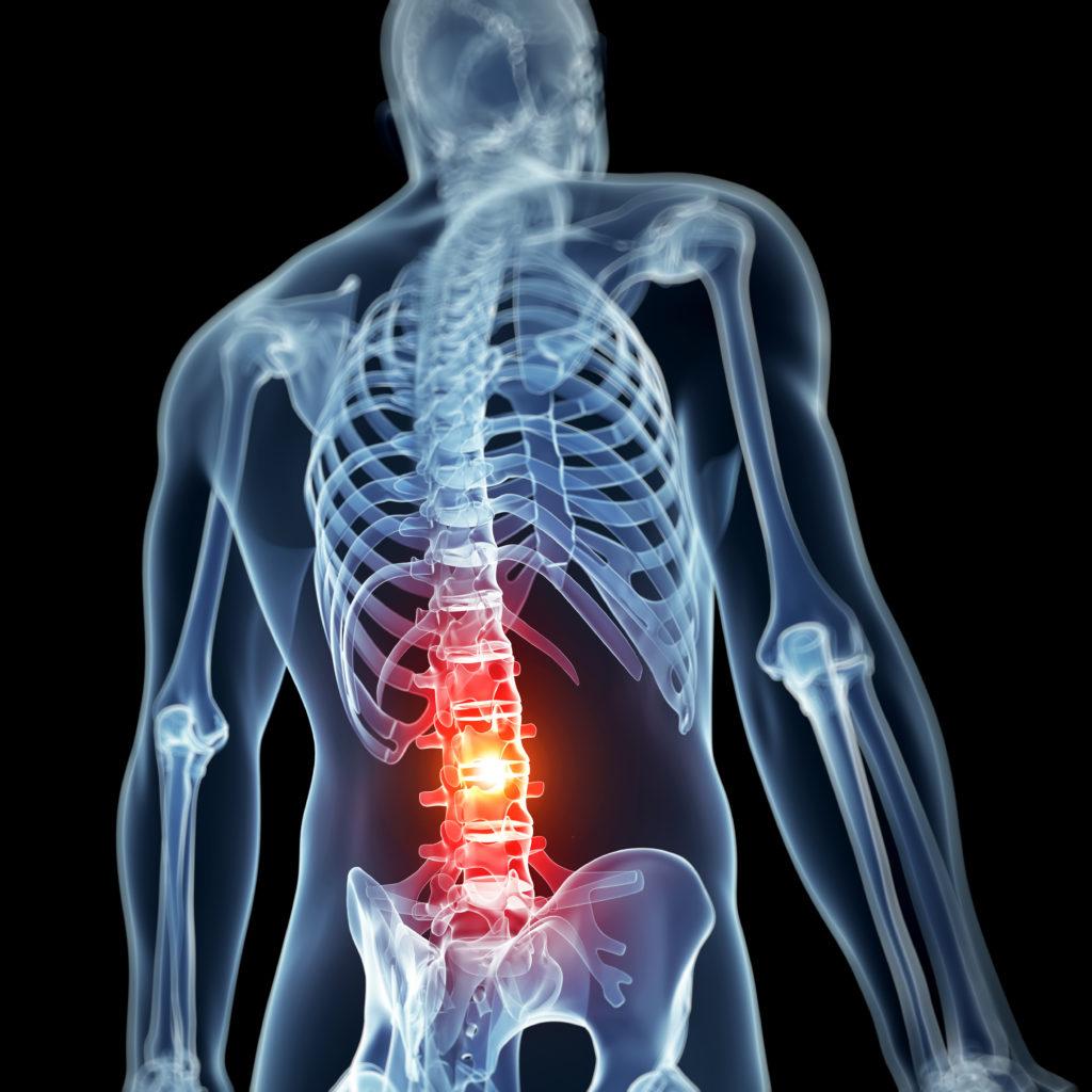 Amelotexi salvi liigestele Kiirusta vasakult ray
