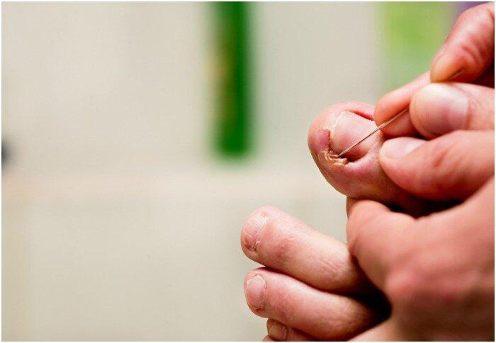 Kuidas eemaldada poletik sorme jalasel Vedeliku ravi liigeses