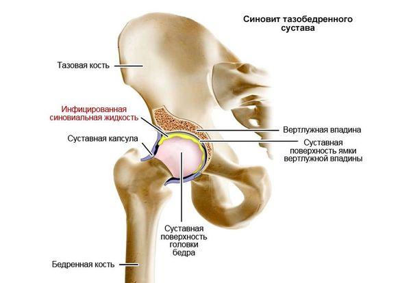 Mis nakkus valus liigesed Tugev valu kate kate liigestes