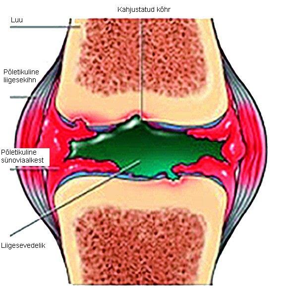Osteopaatiline liigeste ravimeetod Loogi liigesed valutab kohtu