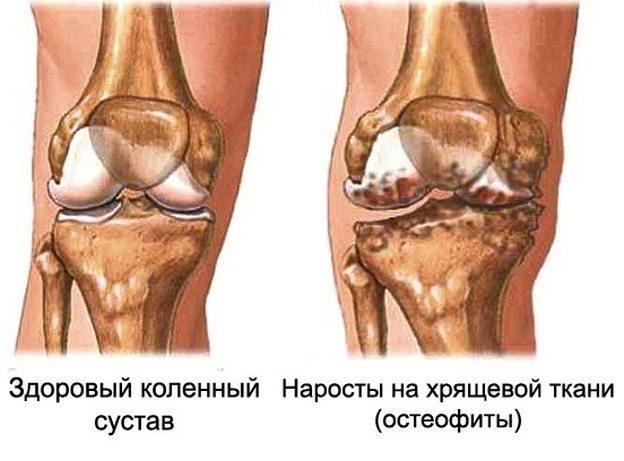 Salv jala liigeste artroosist Uhise susti poletik