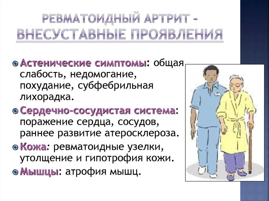 Valu pohjused sormede liigestes ja kaes norkus Artriidi liigeste harja ravi