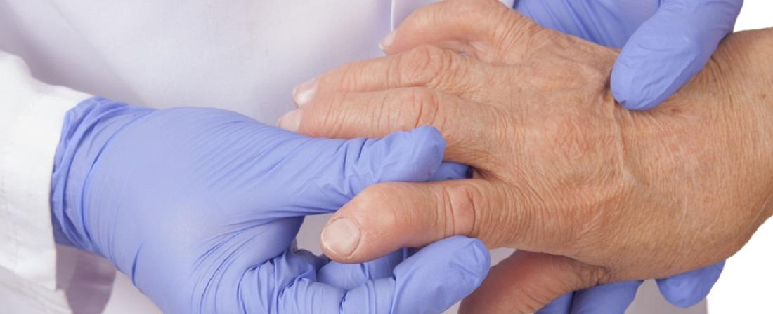 Arthroosi ravi UFO Kuidas toime tulla valu liigestes