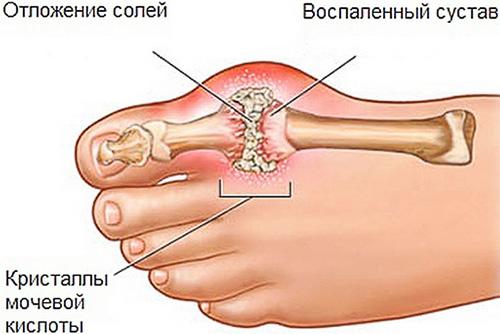 Uhine esimene phalanx artroos Millised on liigeste haigused