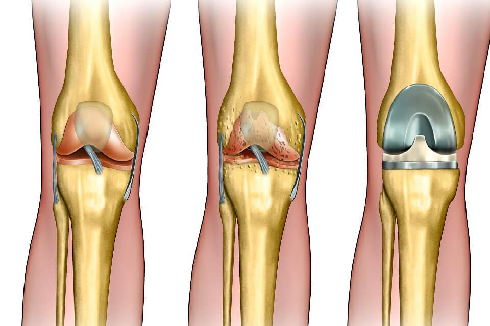 liigesed kriis ja haiget, mida see Suurte liigeste artroos, mis see on