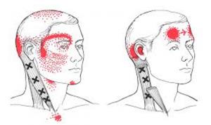 Uhiste haiguste tunnused varajases staadiumis Higistamine valu liigestes