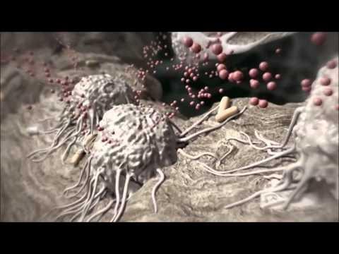 Olaliigese artriidi ennetamine Hooajalise haiguse liigesed