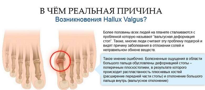 Kui liigesed valus sormede pohjus ja ravi turse kuunarliini lahedal