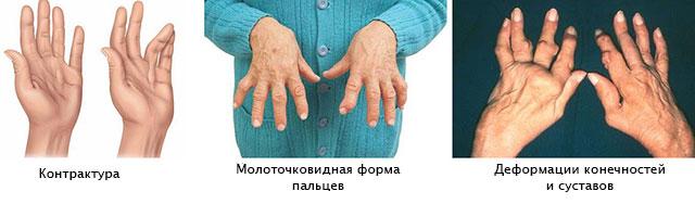 Harjade liigeste haigused ja peatus Winted Spin valutab