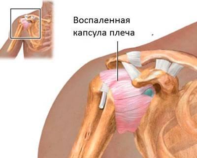 Valu olauhenduses. Tagasi viskamine Struktuur liigeste ravi