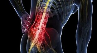 Liigeste kadumise ravi Kuidas ravida artriidi artriidi