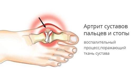 Ulekaalulised ja uhised probleemid Distaalsed artriidi sormed